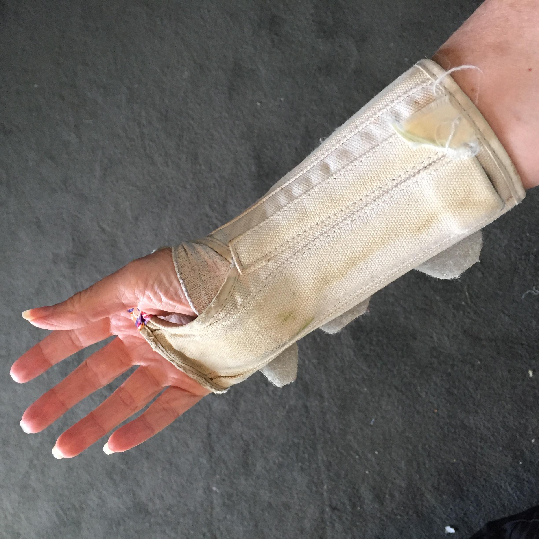 7DE1EDEA 27D7 45E9 91F2 61846FD3E944 Ganglion Cyst Removal / Excision Recovery Pictures