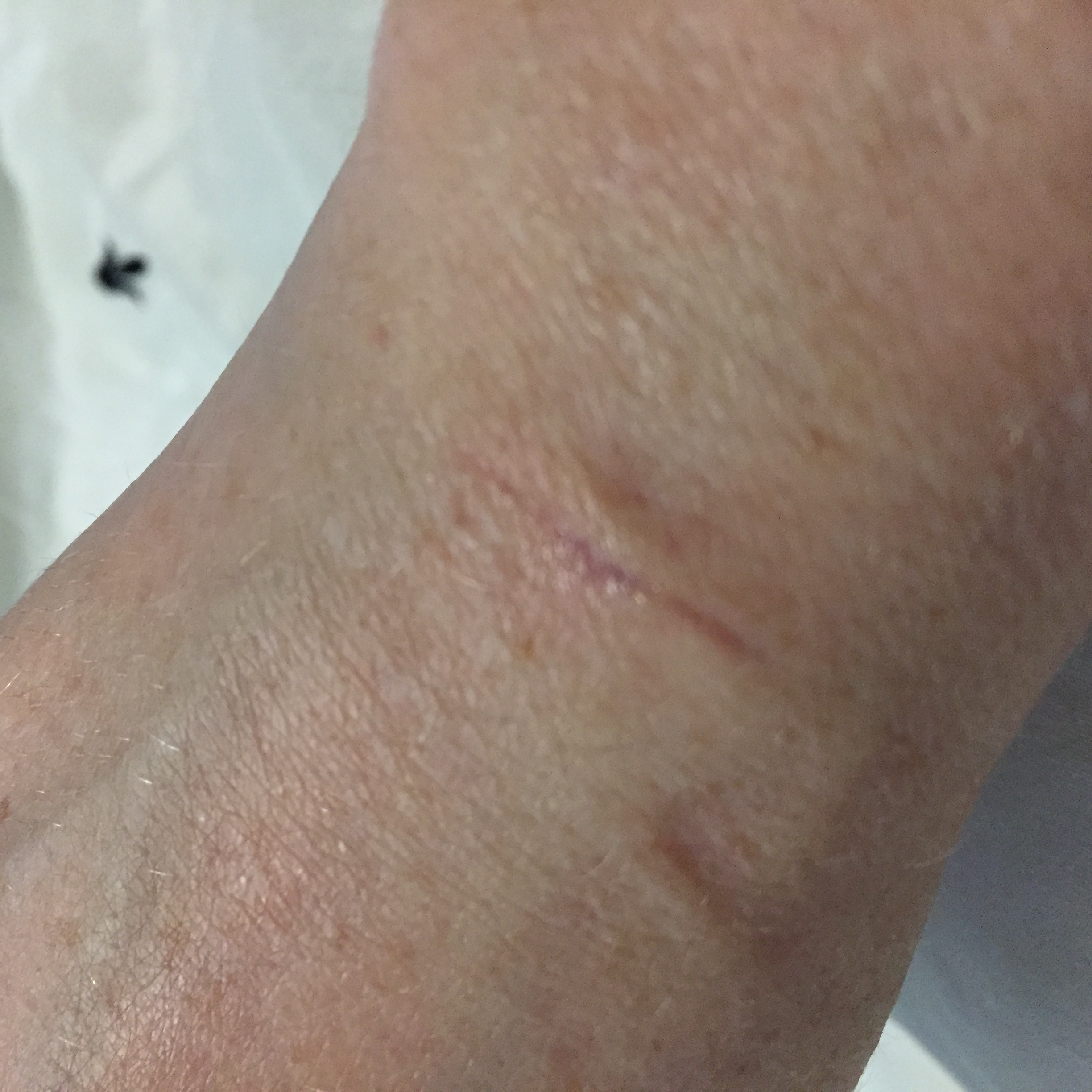 826DC554 50F9 47C1 9BFB 531DBFF14384 Ganglion Cyst Removal / Excision Recovery Pictures