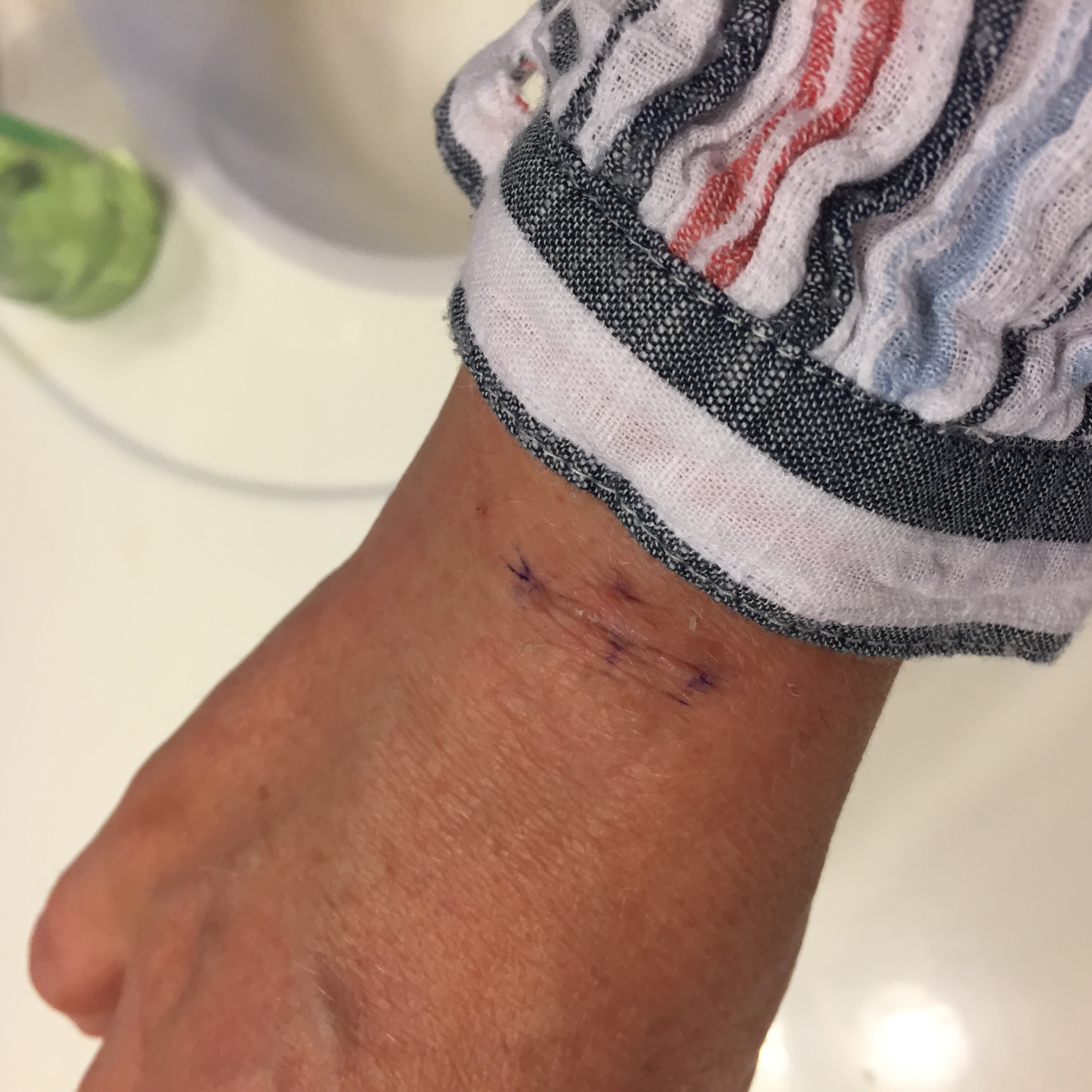 F0007651 4C23 439C A8C2 F90C906FF5A5 Ganglion Cyst Removal / Excision Recovery Pictures